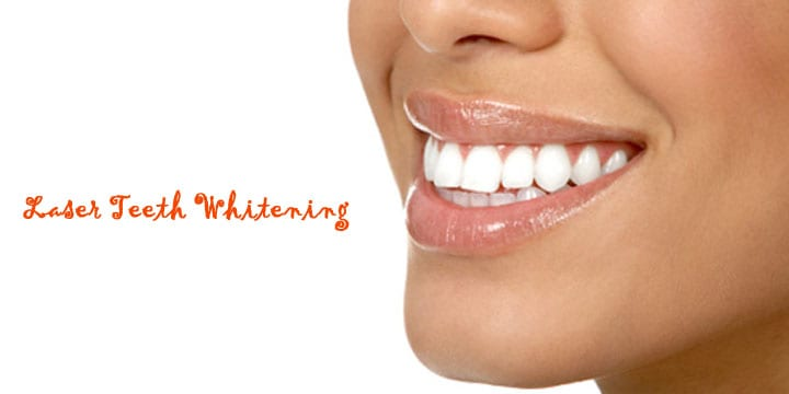 Get 74% off Laser Teeth Whitening from £59.00 I Love Newcastle
